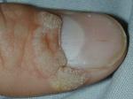 Tratamiento de las Verrugas Plantares: ¿mejor Crioterapia o Ácido Salicílico que, simplemente, esperar y ver?