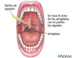 test-estreptococo